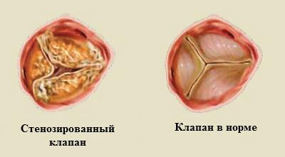 Диета при протезировании клапанов сердца